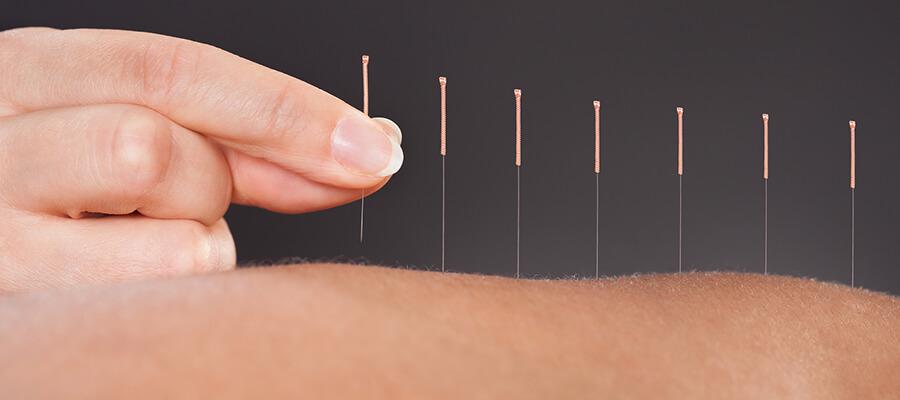 Acupuncture in West Orange, NJ